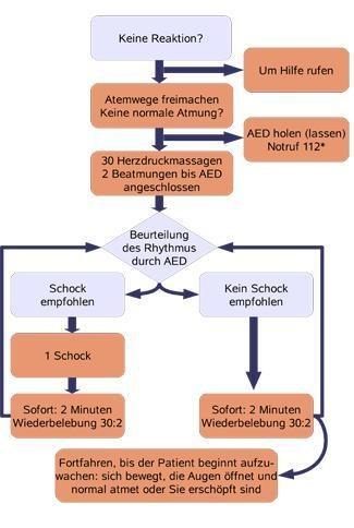 Anwendung eines externen Defibrilators (Quelle: DGUV)