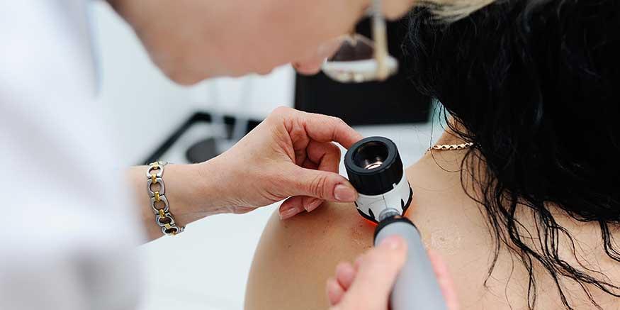 Hautuntersuchung mit Dermatoskop